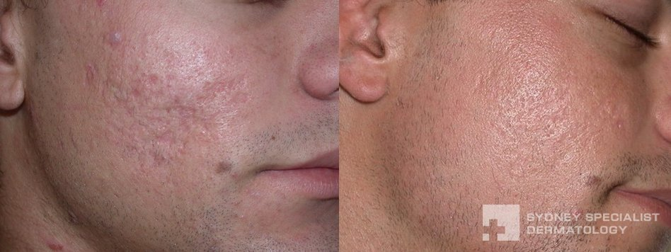 Conditions and Treatments | Acne Scars and their treatment