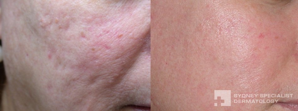 Fraxel Laser Treatment Acne Scars