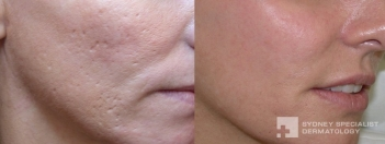 Acne surgery and Fraxel laser