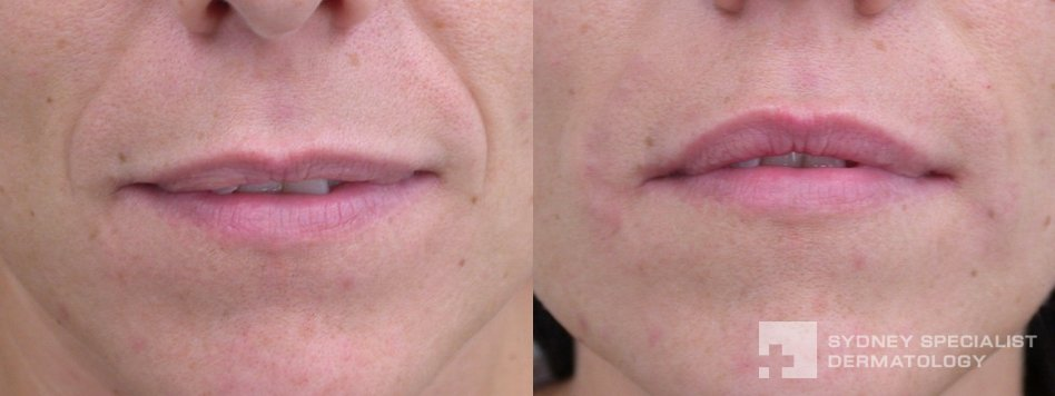 Conditions And Treatments Fine Lines And Wrinkles