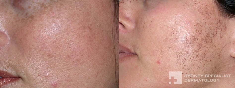 Conditions and Treatments | Pigment and Brown Lesions