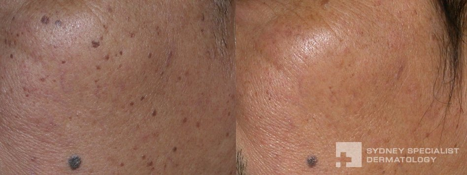 Conditions and Treatments | Tags and Age Spots | Sydney