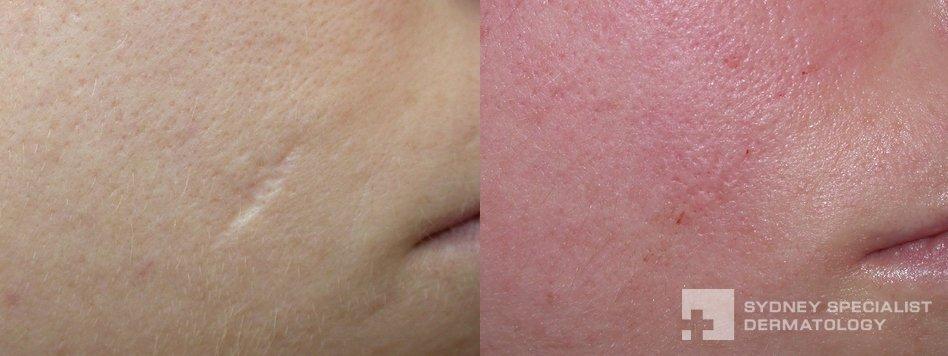 indented scar filler