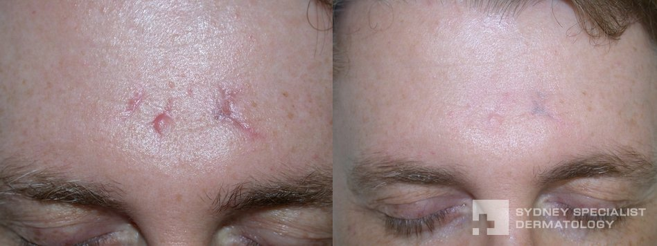 Treatment For Men Before And After Photos Sydney