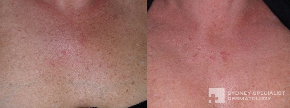 Photodynamic Ipl Before And After Photos Sydney