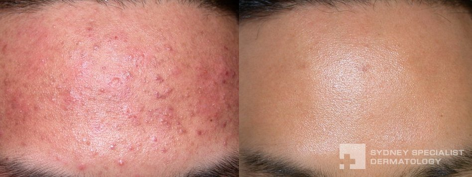Acne and Acne Scarring | Before and After Photos | Sydney