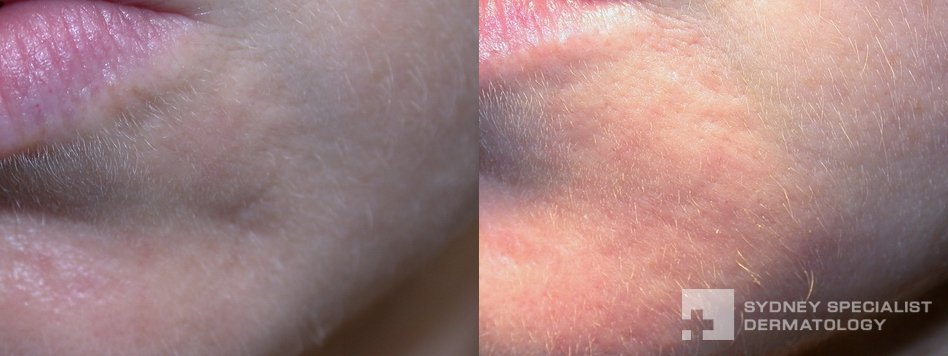 Acne And Acne Scarring Before And After Photos Sydney