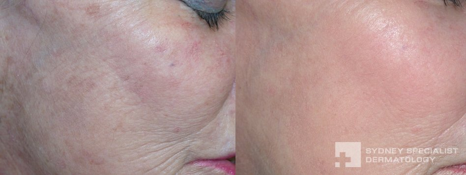 Pre Cancerous Sun Spots Before And After Photos Sydney