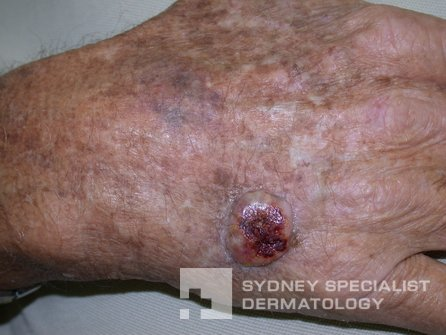 Types Of Skin Cancer Squamous Cell Carcinoma Sydney